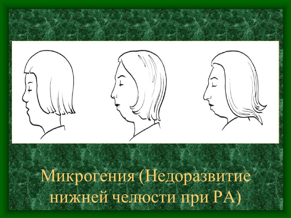 Микрогения (Недоразвитие нижней челюсти при РА)