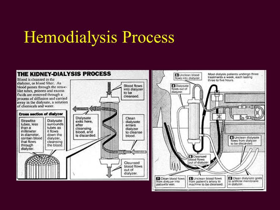 Hemodialysis Process