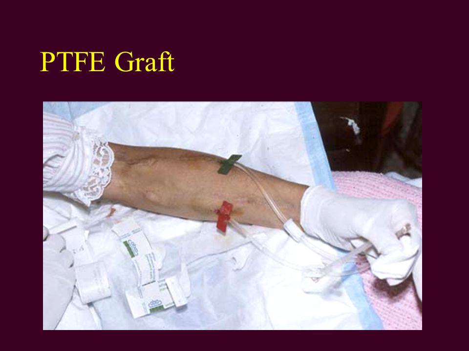 PTFE Graft
