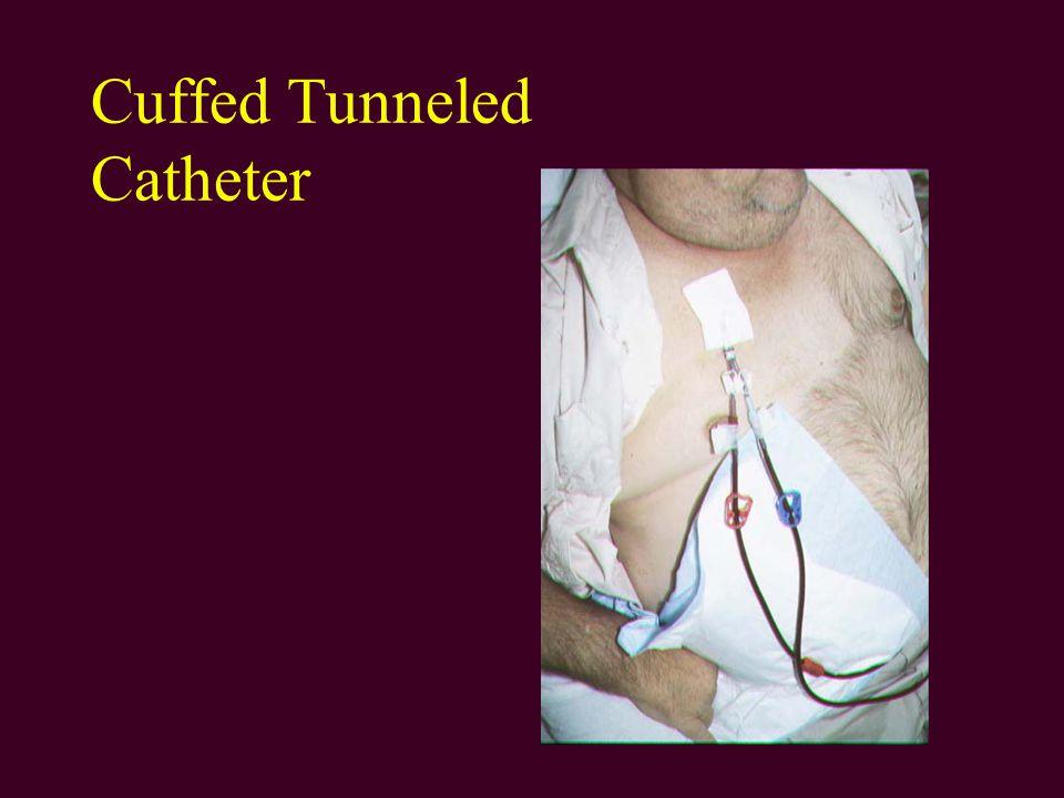 Cuffed Tunneled Catheter