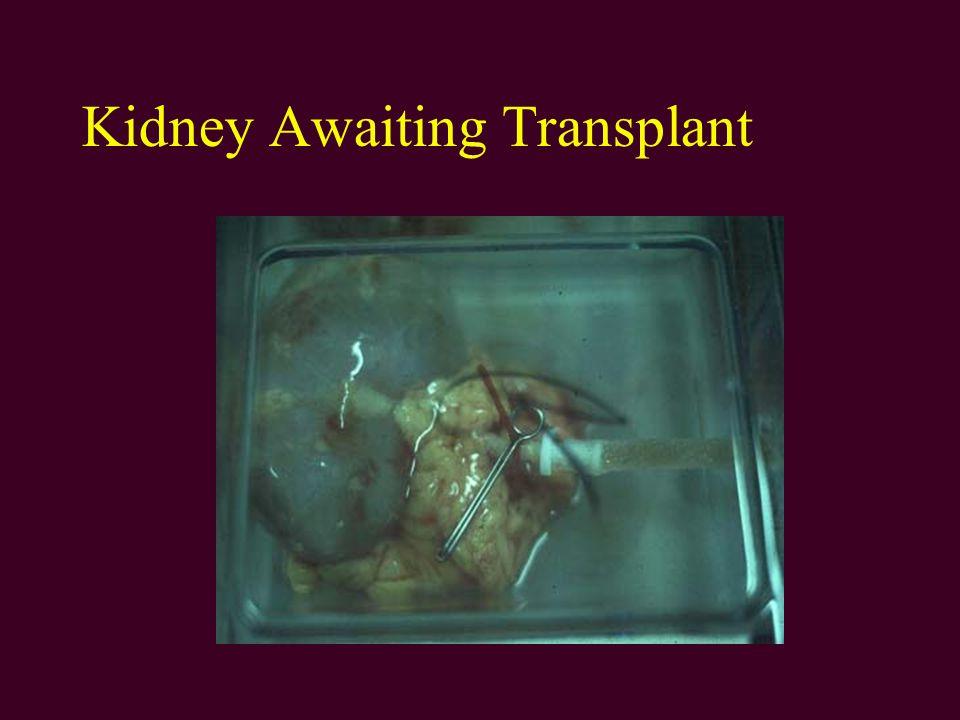Kidney Awaiting Transplant