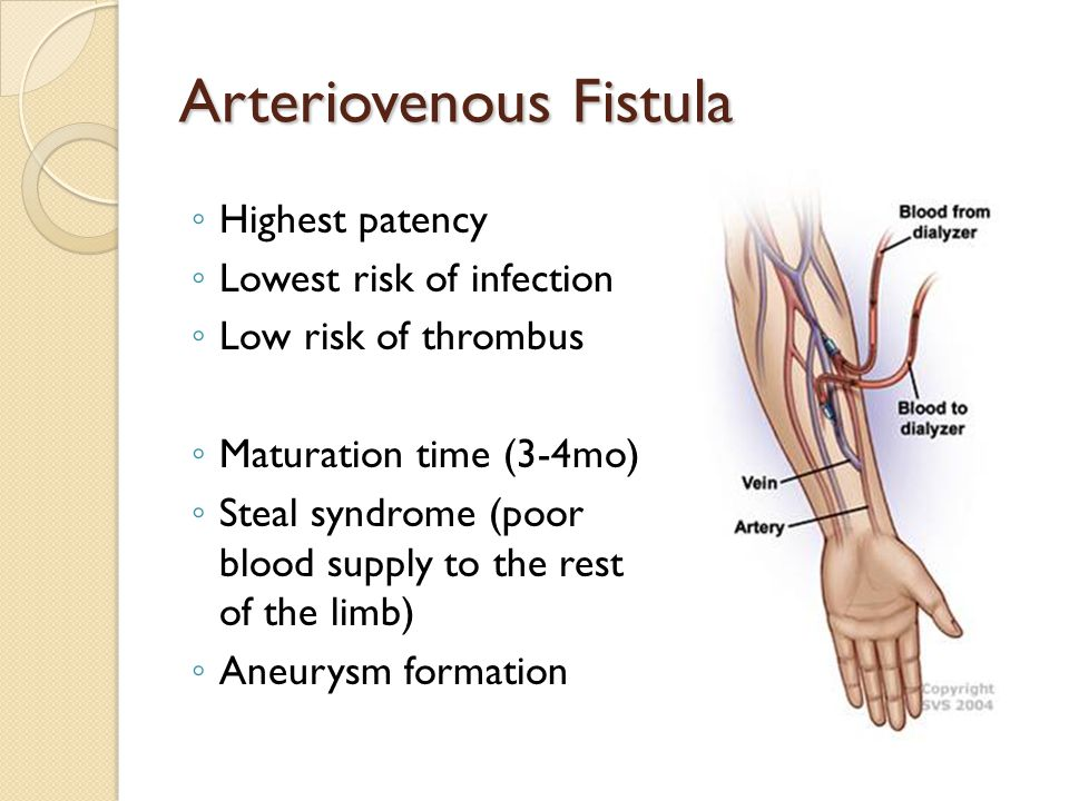 Arteriovenous Fistula ◦ Highest patency ◦ Lowest risk of infection ◦ Low risk of thrombus ◦ Maturation time (3-4mo) ◦ Steal syndrome (poor blood supply to the rest of the limb) ◦ Aneurysm formation