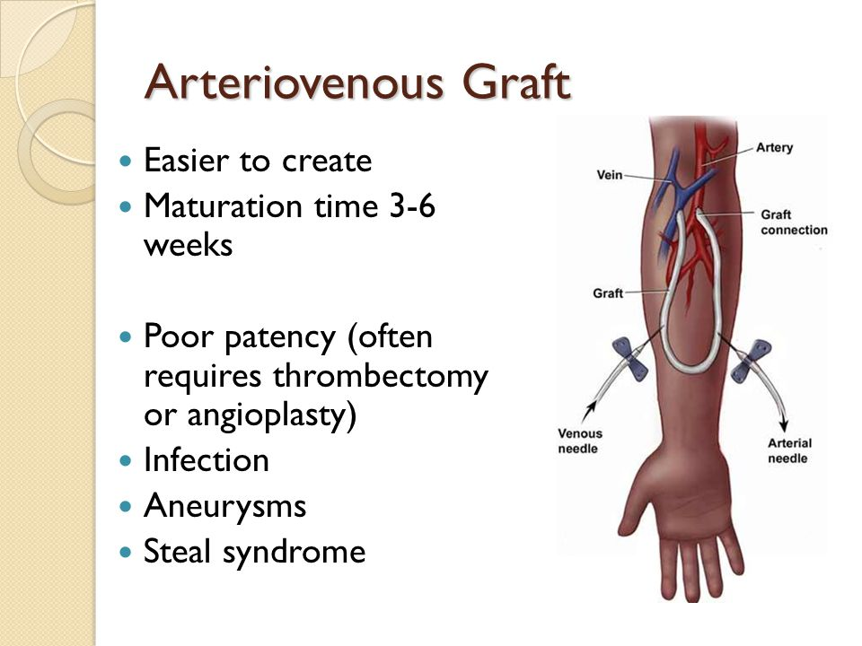 Arteriovenous Graft Easier to create Maturation time 3-6 weeks Poor patency (often requires thrombectomy or angioplasty) Infection Aneurysms Steal syndrome