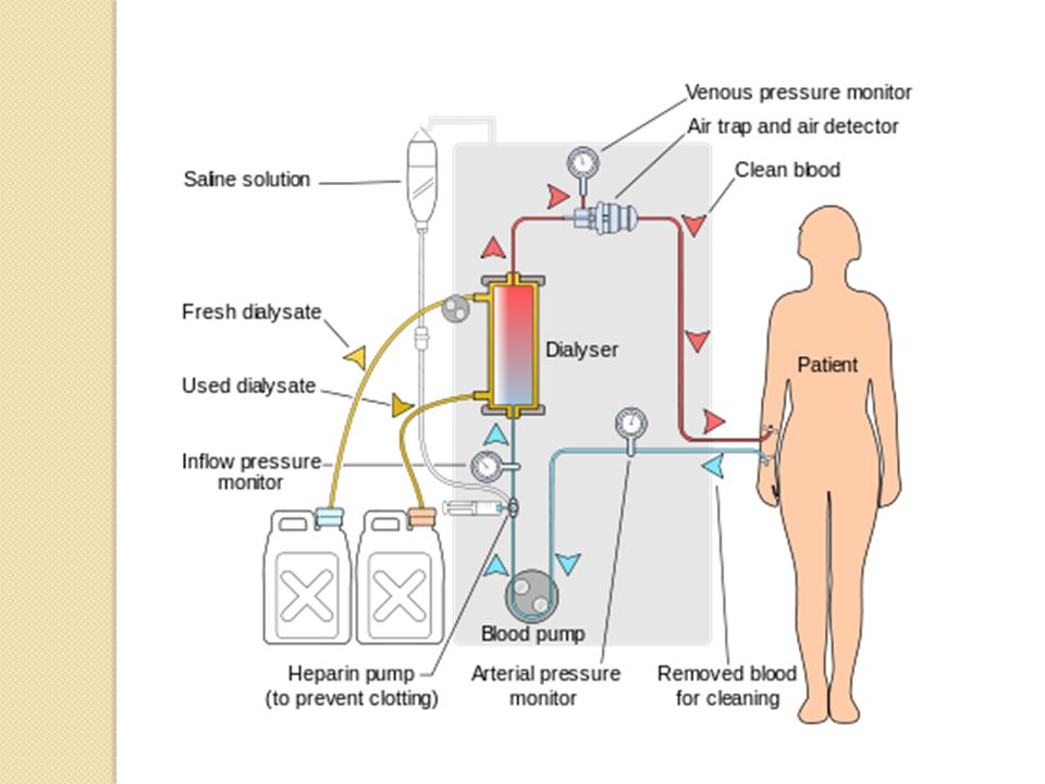 Ultrafiltration use of hydrostatic pressure gradient to induce convection (filtration of water) solvent drag (pulls dissolved solutes) across removal of excess fluid