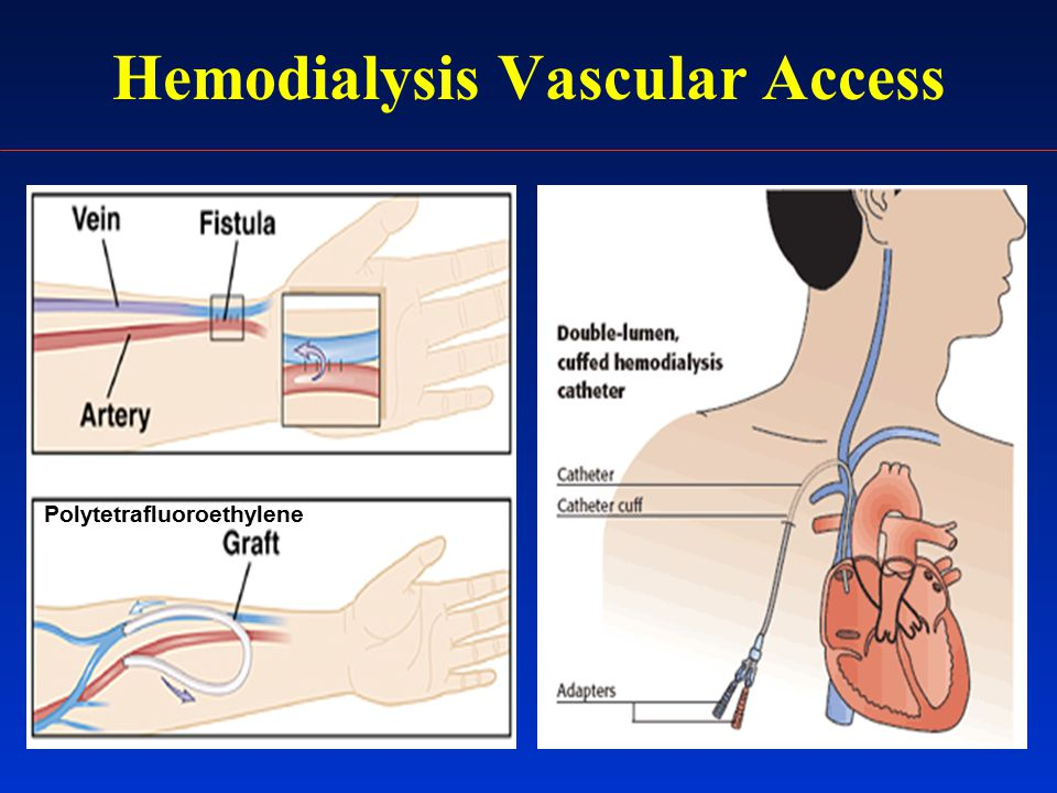 Hemodialysis Vascular Access Polytetrafluoroethylene