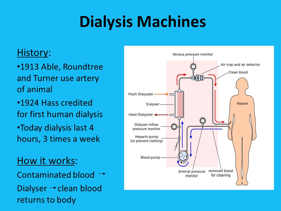Dialysis Machines History: 1913 Able, Roundtree and Turner use artery of animal 1924 Hass credited for first human dialysis Today dialysis last 4 hours, 3 times a week How it works: Contaminated blood Dialyser clean blood returns to body