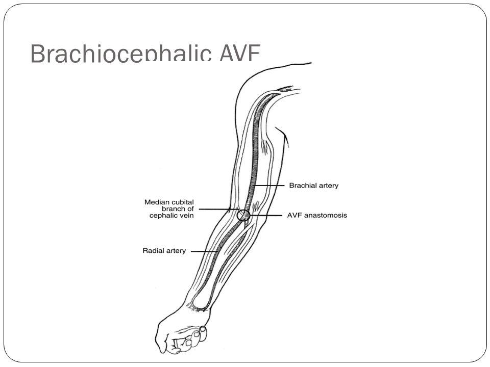 Brachiocephalic AVF