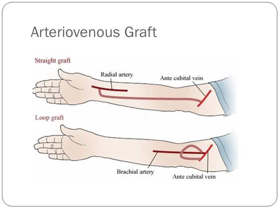 Arteriovenous Graft