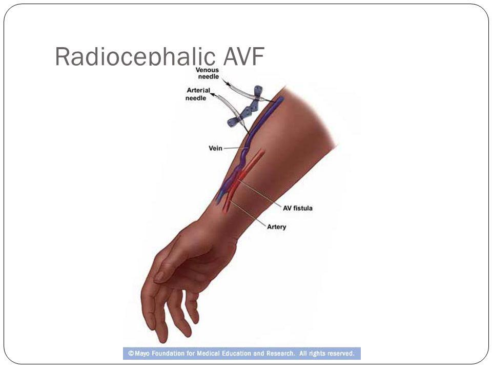 Radiocephalic AVF