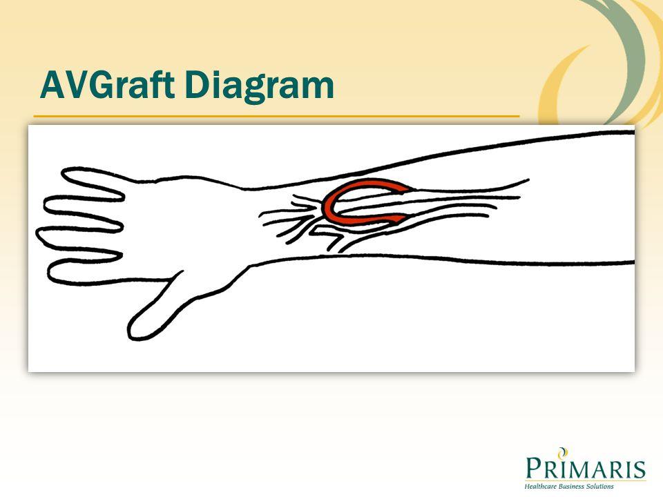 AVGraft Diagram
