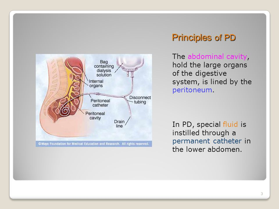 3 Principles of PD The abdominal cavity, hold the large organs of the digestive system, is lined by the peritoneum.