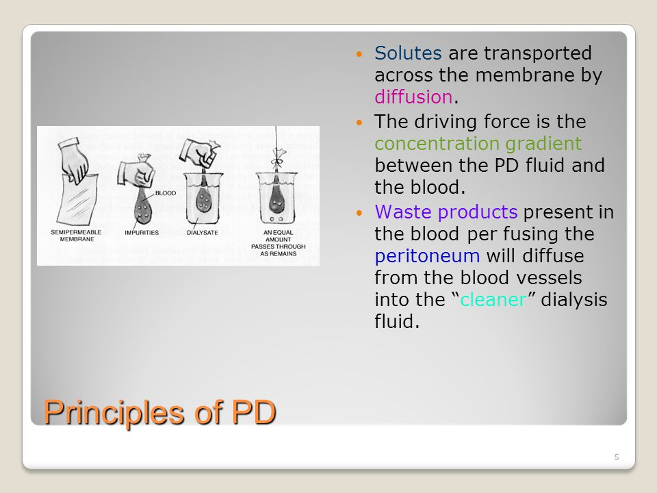 6 Principles of PD The dialysis fluid should be instilled for 4 to 6 hours.