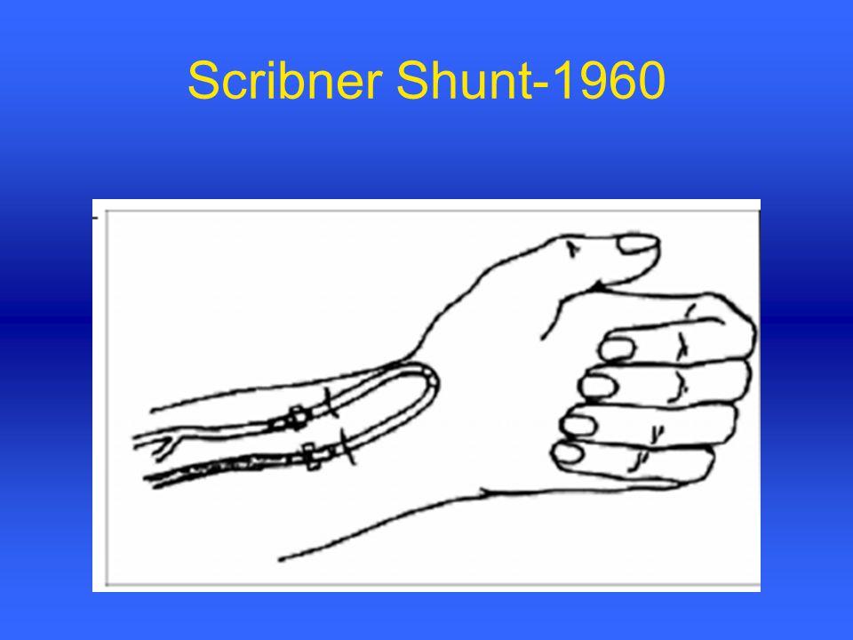 Scribner Shunt-1960