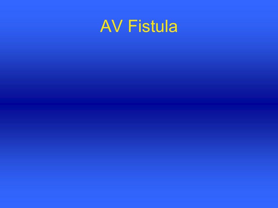 AV Fistula