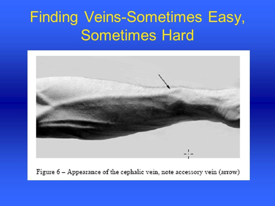 Finding Veins-Sometimes Easy, Sometimes Hard