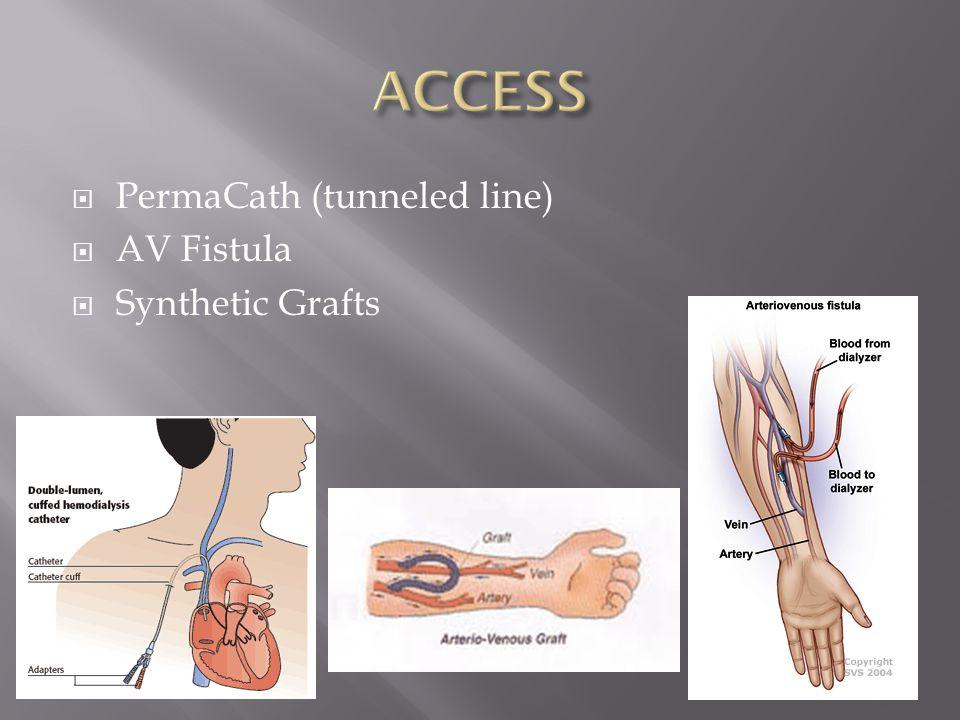  PermaCath (tunneled line)  AV Fistula  Synthetic Grafts