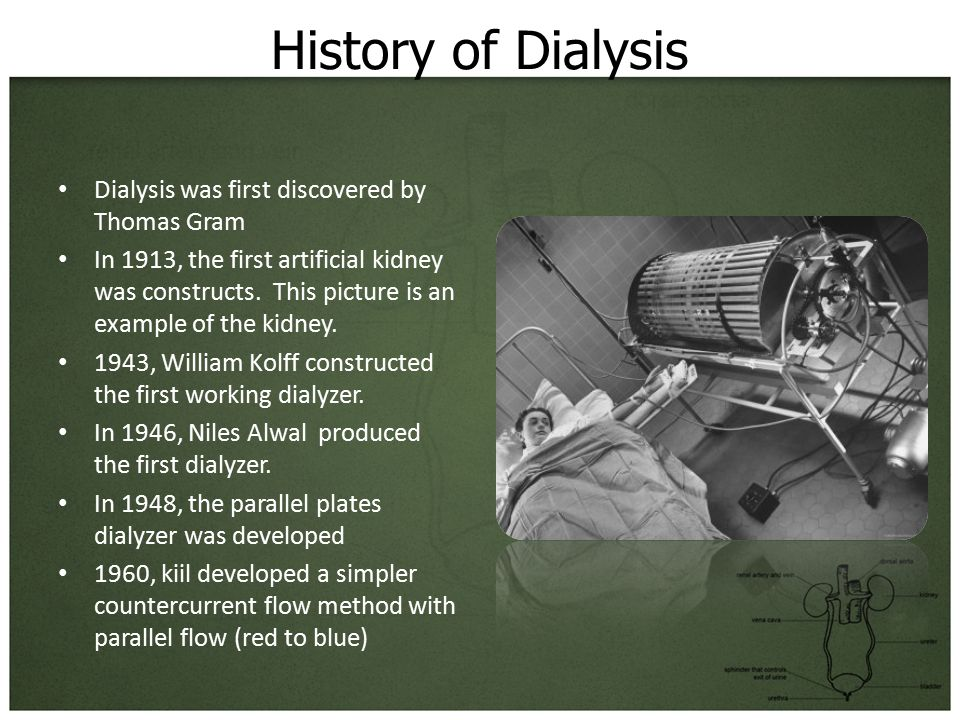 History of Dialysis Dialysis was first discovered by Thomas Gram In 1913, the first artificial kidney was constructs.