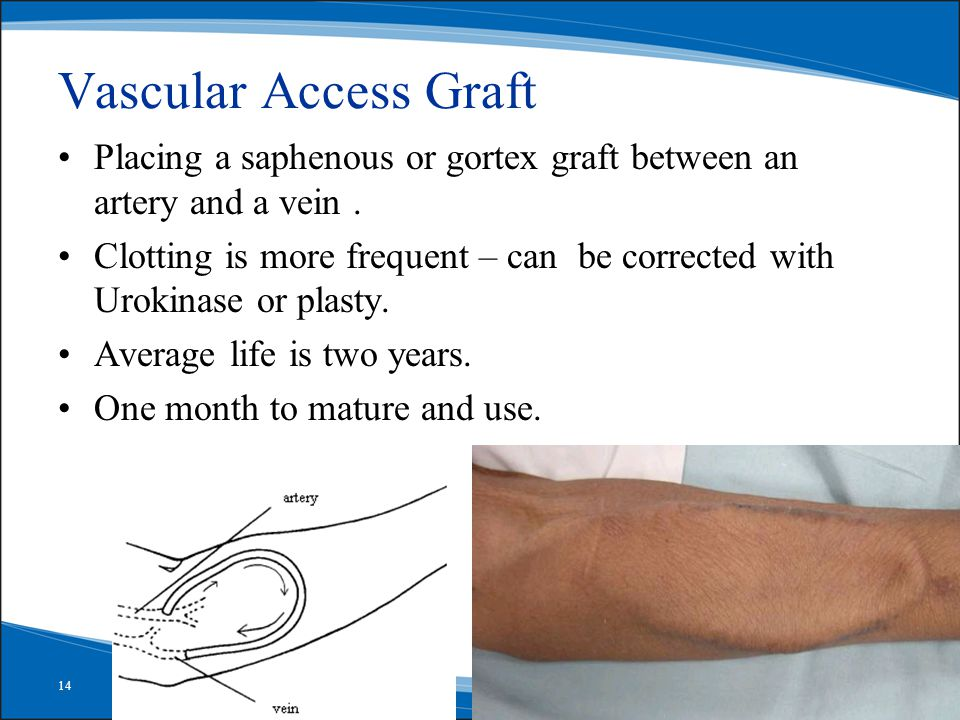 14 Vascular Access Graft Placing a saphenous or gortex graft between an artery and a vein.