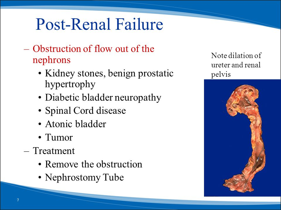 7 Post-Renal Failure –Obstruction of flow out of the nephrons Kidney stones, benign prostatic hypertrophy Diabetic bladder neuropathy Spinal Cord disease Atonic bladder Tumor –Treatment Remove the obstruction Nephrostomy Tube Note dilation of ureter and renal pelvis