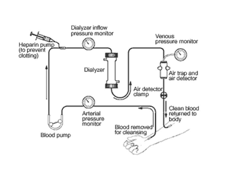 Hemodialysis Circuit