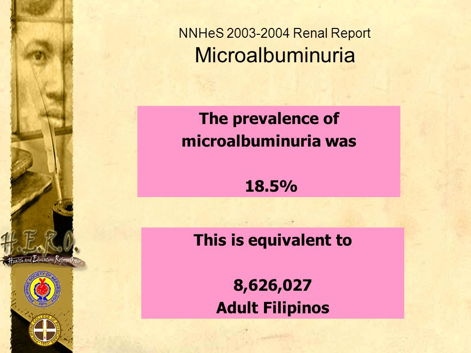 NNHeS 2003-2004 Renal Report Microalbuminuria The prevalence of microalbuminuria was 18.5% This is equivalent to 8,626,027 Adult Filipinos
