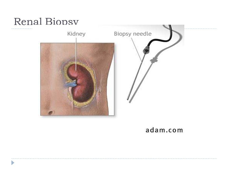 Renal Biopsy