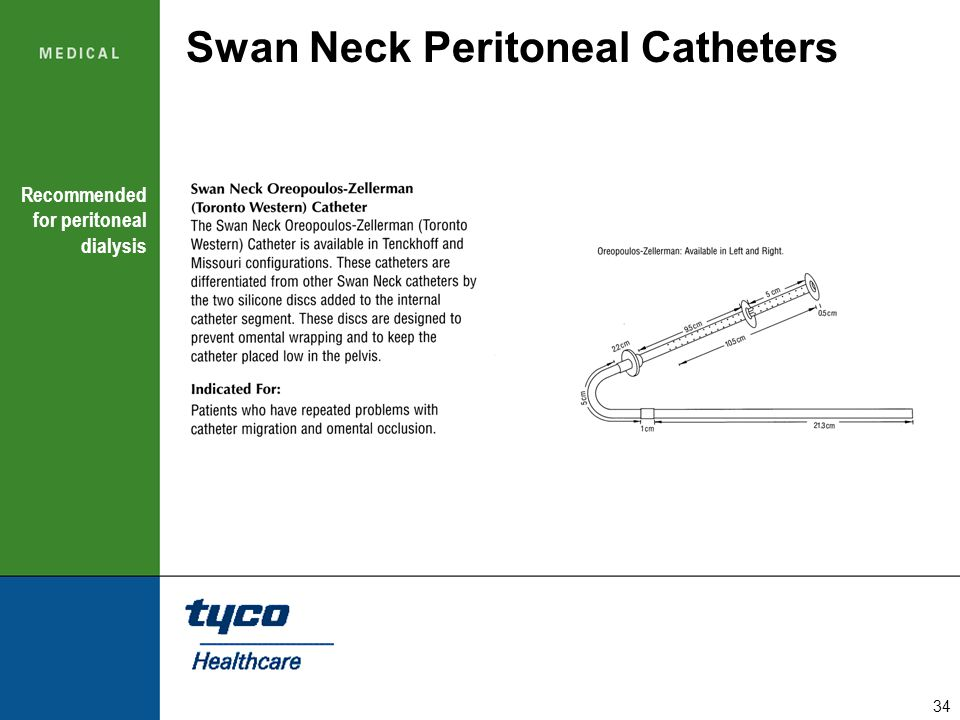 34 Swan Neck Peritoneal Catheters Recommended for peritoneal dialysis