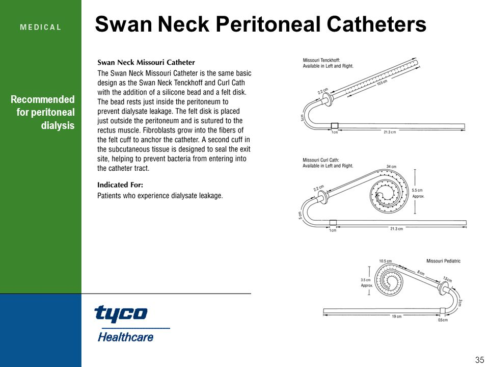 35 Swan Neck Peritoneal Catheters Recommended for peritoneal dialysis