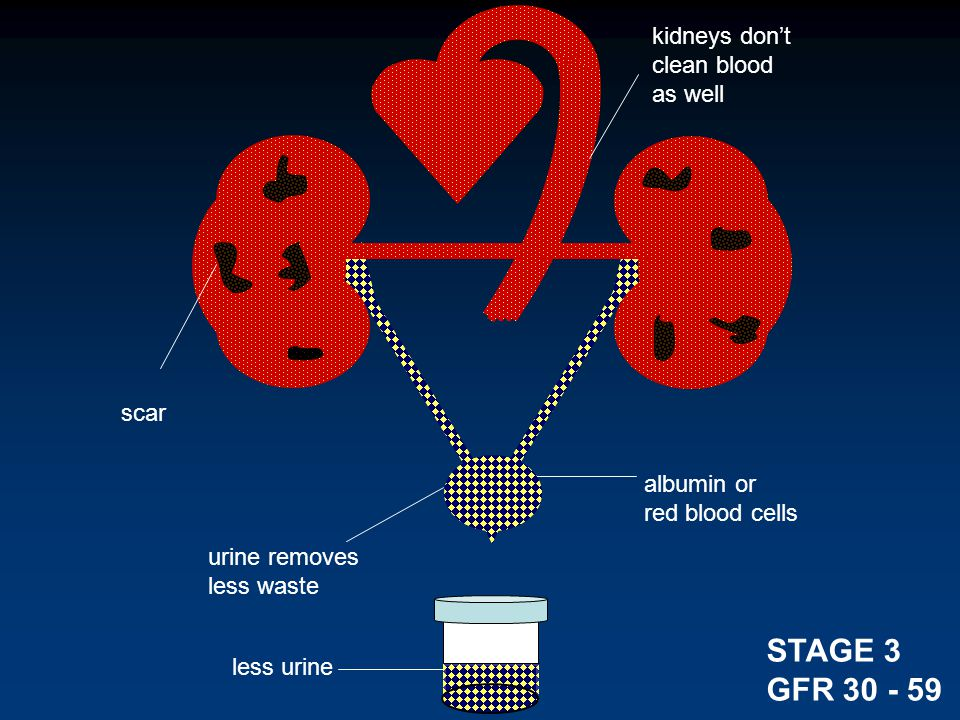 kidneys don't clean blood as well urine removes less waste less urine albumin or red blood cells STAGE 3 GFR 30 - 59 scar