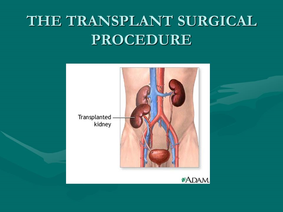 THE TRANSPLANT SURGICAL PROCEDURE