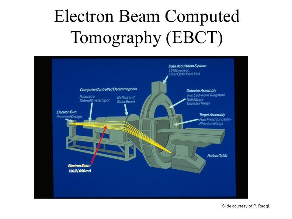 Slide courtesy of P. Raggi. Electron Beam Computed Tomography (EBCT)
