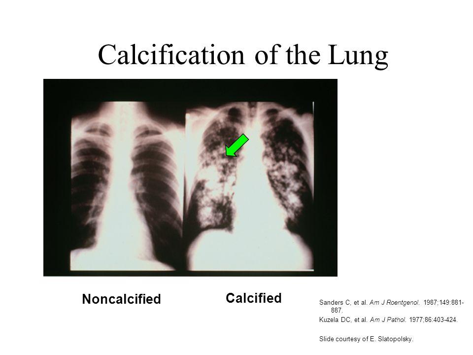 Calcification of the Lung Sanders C, et al. Am J Roentgenol. 1987;149:881- 887. Kuzela DC, et al. Am J Pathol. 1977;86:403-424. Slide courtesy of E. S