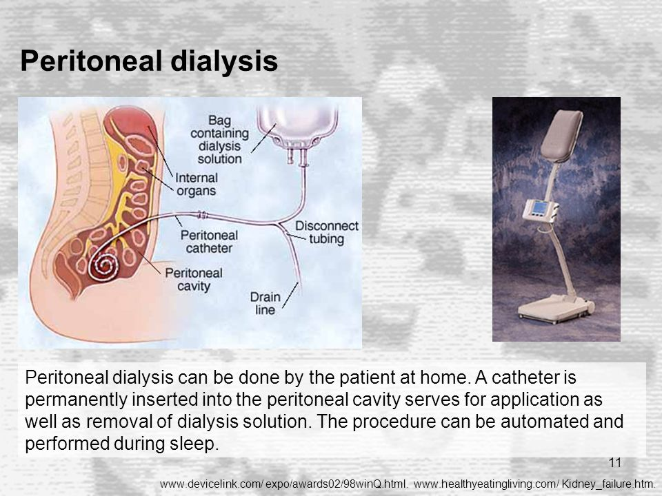 11 Peritoneal dialysis www.devicelink.com/ expo/awards02/98winQ.html. www.healthyeatingliving.com/ Kidney_failure.htm. Peritoneal dialysis can be done
