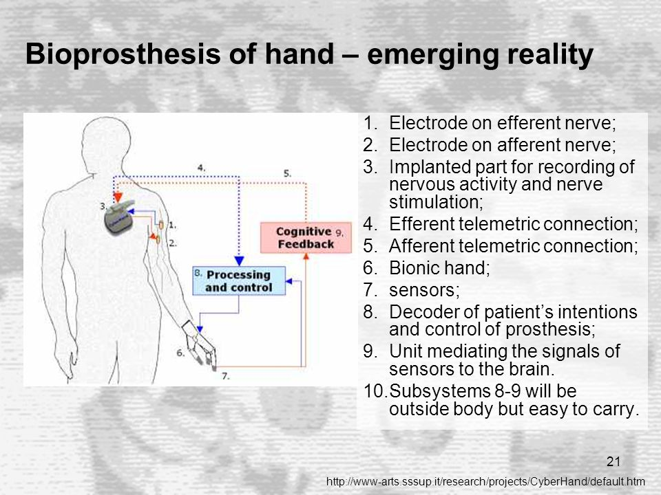 21 Bioprosthesis of hand – emerging reality 1.Electrode on efferent nerve; 2.Electrode on afferent nerve; 3.Implanted part for recording of nervous activity and nerve stimulation; 4.Efferent telemetric connection; 5.Afferent telemetric connection; 6.Bionic hand; 7.sensors; 8.Decoder of patient's intentions and control of prosthesis; 9.Unit mediating the signals of sensors to the brain.