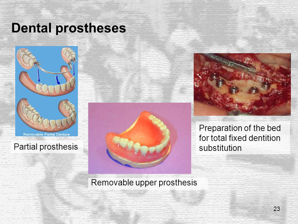 23 Dental prostheses Removable upper prosthesis Partial prosthesis Preparation of the bed for total fixed dentition substitution
