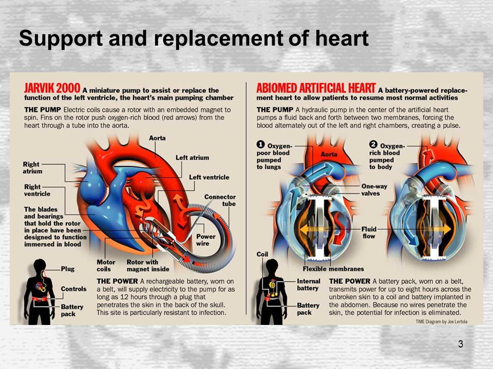 3 Support and replacement of heart