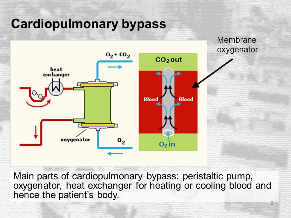6 Main parts of cardiopulmonary bypass: peristaltic pump, oxygenator, heat exchanger for heating or cooling blood and hence the patient's body.