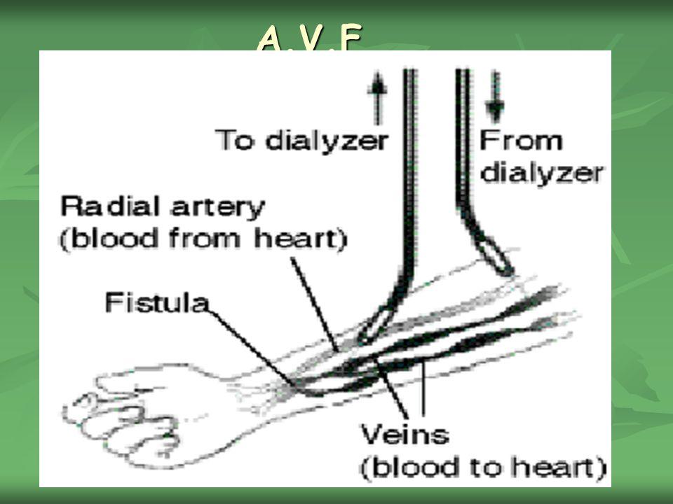 A.V.F