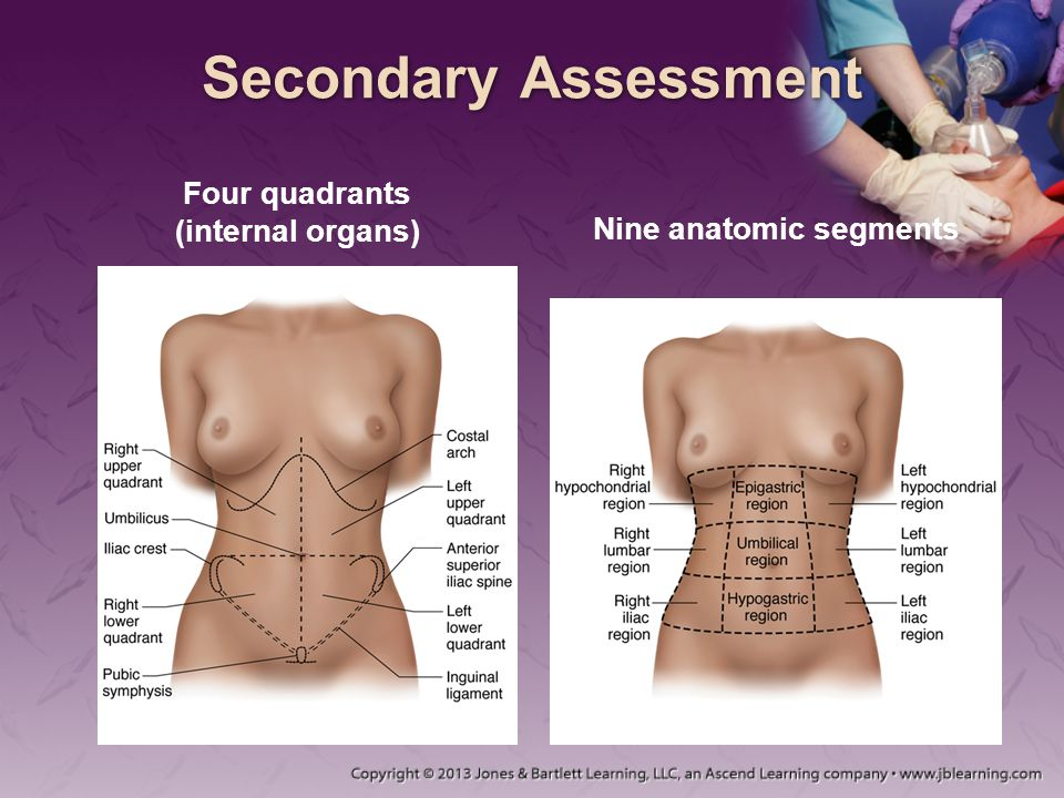 Secondary Assessment Four quadrants (internal organs) Nine anatomic segments
