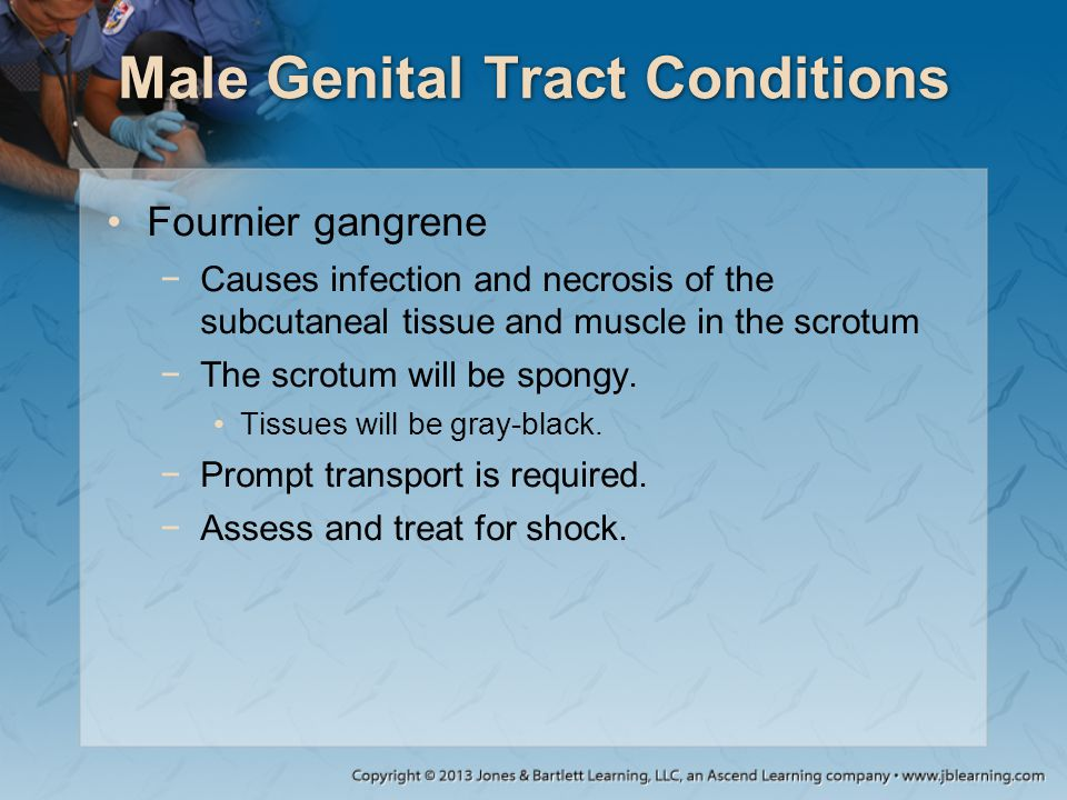 Male Genital Tract Conditions Fournier gangrene −Causes infection and necrosis of the subcutaneal tissue and muscle in the scrotum −The scrotum will b