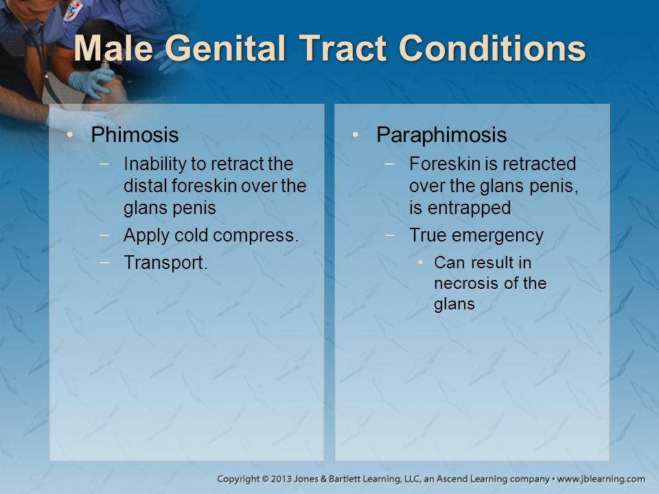 Male Genital Tract Conditions Phimosis −Inability to retract the distal foreskin over the glans penis −Apply cold compress. −Transport. Paraphimosis −