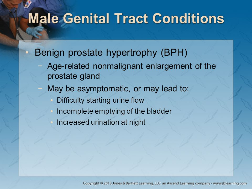 Male Genital Tract Conditions Benign prostate hypertrophy (BPH) −Age-related nonmalignant enlargement of the prostate gland −May be asymptomatic, or m
