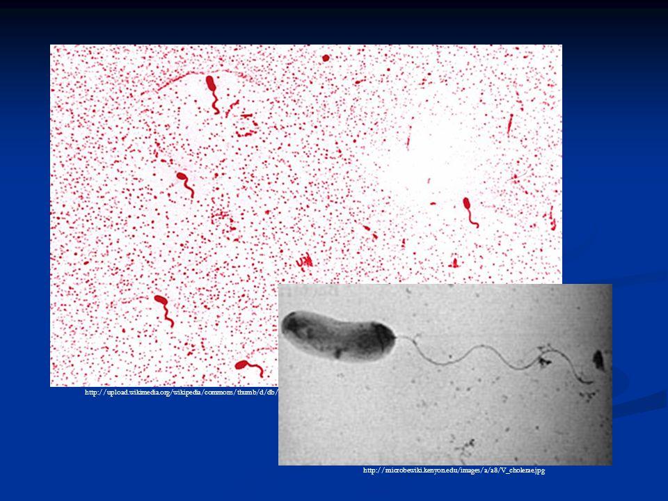 http://upload.wikimedia.org/wikipedia/commons/thumb/d/db/Vibrio_cholerae_01.jpg/800px-Vibrio_cholerae_01.jpg http://microbewiki.kenyon.edu/images/a/a8/V_cholerae.jpg