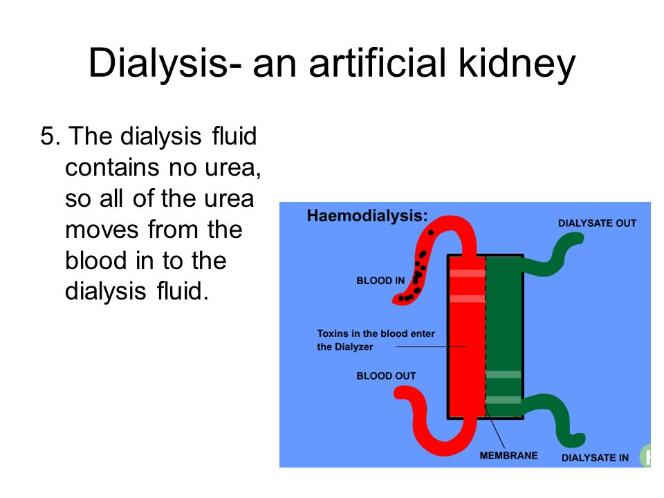 Dialysis- an artificial kidney 5. The dialysis fluid contains no urea, so all of the urea moves from the blood in to the dialysis fluid.