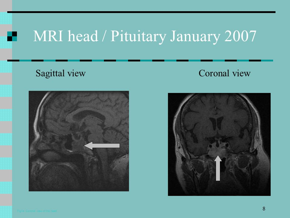 8 MRI head / Pituitary January 2007 Sagittal view Coronal view Fig1a: Coronal view of the head