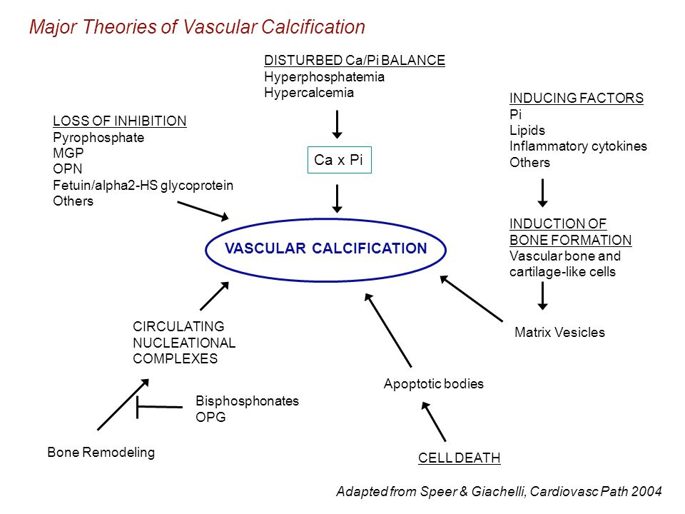 VASCULAR CALCIFICATION DISTURBED Ca/Pi BALANCE Hyperphosphatemia Hypercalcemia Ca x Pi INDUCING FACTORS Pi Lipids Inflammatory cytokines Others INDUCTION OF BONE FORMATION Vascular bone and cartilage-like cells Apoptotic bodies CELL DEATH LOSS OF INHIBITION Pyrophosphate MGP OPN Fetuin/alpha2-HS glycoprotein Others CIRCULATING NUCLEATIONAL COMPLEXES Bisphosphonates OPG Bone Remodeling Matrix Vesicles Major Theories of Vascular Calcification Adapted from Speer & Giachelli, Cardiovasc Path 2004