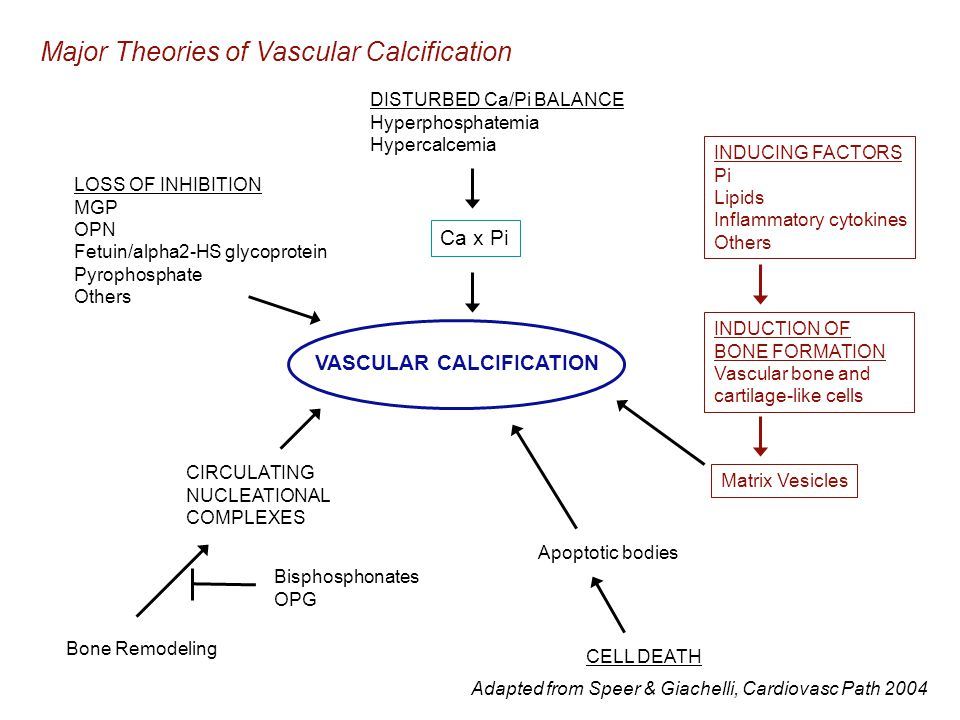 VASCULAR CALCIFICATION DISTURBED Ca/Pi BALANCE Hyperphosphatemia Hypercalcemia Ca x Pi INDUCING FACTORS Pi Lipids Inflammatory cytokines Others INDUCTION OF BONE FORMATION Vascular bone and cartilage-like cells Apoptotic bodies CELL DEATH LOSS OF INHIBITION MGP OPN Fetuin/alpha2-HS glycoprotein Pyrophosphate Others CIRCULATING NUCLEATIONAL COMPLEXES Bisphosphonates OPG Bone Remodeling Matrix Vesicles Major Theories of Vascular Calcification Adapted from Speer & Giachelli, Cardiovasc Path 2004