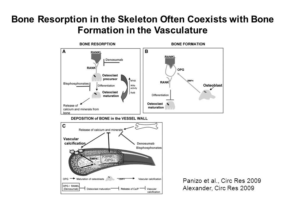 Bone Resorption in the Skeleton Often Coexists with Bone Formation in the Vasculature Panizo et al., Circ Res 2009 Alexander, Circ Res 2009