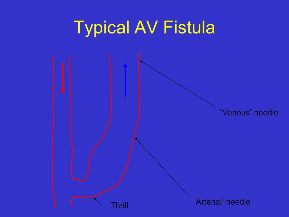 "Typical AV Fistula ""Arterial"" needle ""Venous"" needle Thrill"