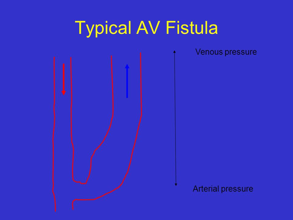 Typical AV Fistula Arterial pressure Venous pressure